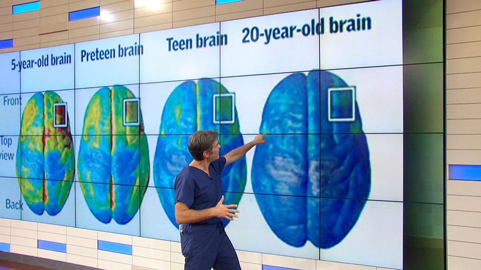 Dr. Oz Explains How Brains Mature