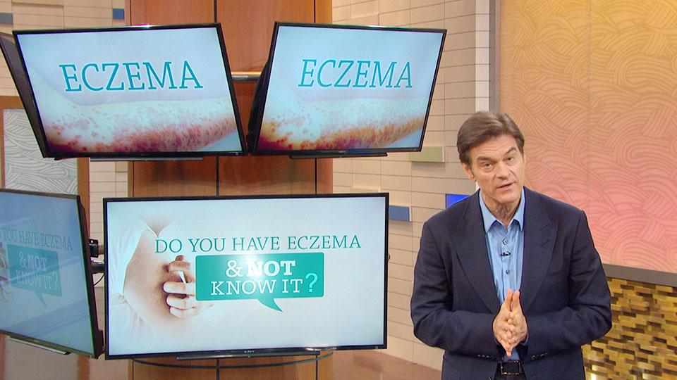 Do You Have Eczema and Not Know It?